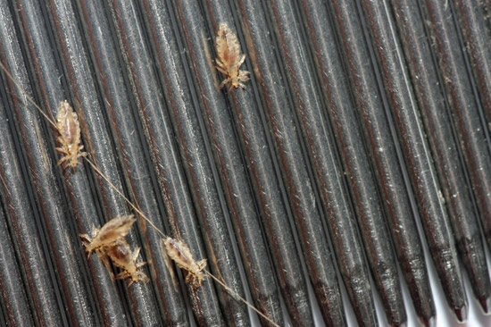 The Dreaded Head Lice Pest Control Blog Orange County